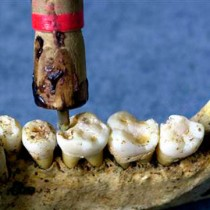 Dentistry, a 9000-year-old science