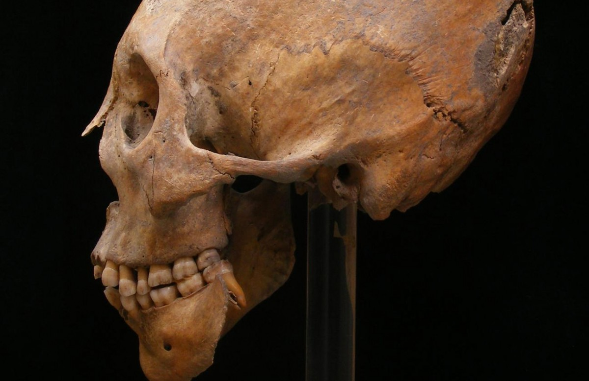 A modified skull from Gyõr. The practice of modification originated in Central Asia and has been associated with Huns and other nomadic populations. Credit: Erzsébet Fóthi, Hungarian Natural History Museum Budapest.