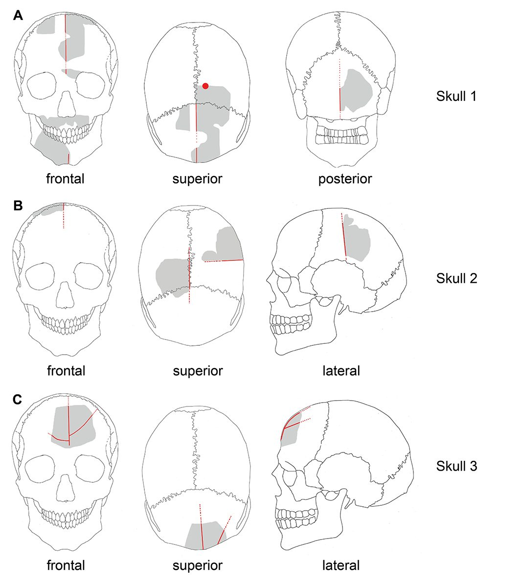 Fig. 4: Schematic drawings of Göbekli Tepe skulls. Gray: preserved elements; red: modifications. (Image: Gresky, Haelm, DAI)