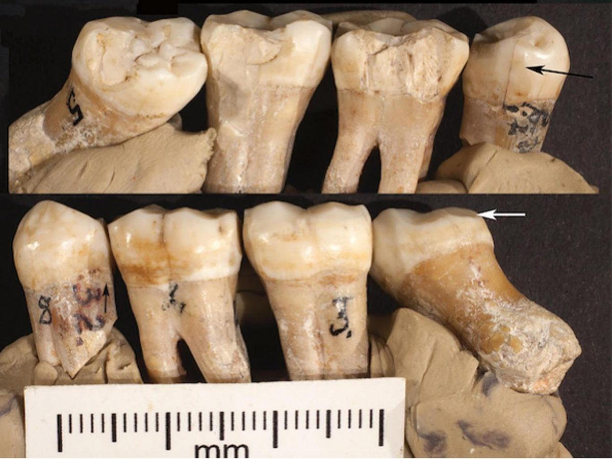 The teeth showed what is being interpreted evidence of primitive attempts to correct problems with them University of Kansas/PA