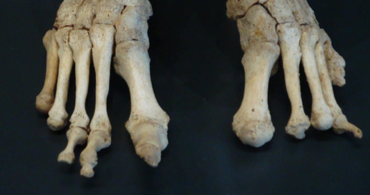 These are feet bones, severely affected by leprosy, from the Om Kloster Museum in Northern Jutland Denmark. Credit: Saige Kelmelis
