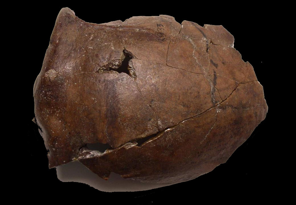 The cranium of a person who lived in what's now Papua New Guinea, 6,000 years ago. Credit: Arthur Durband