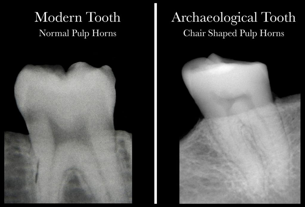 This is a comparison of dental X-rays from patients with and without VItamin D deficiency. Credit: McMaster University