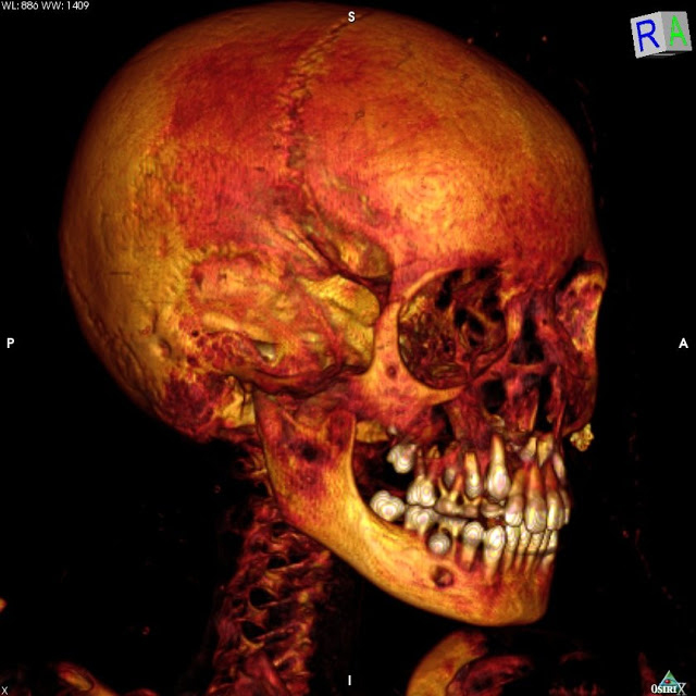 The researchers employed computed tomography scanning techniques (CT scans) to analyse the mummies. Credit: Patricia Mora