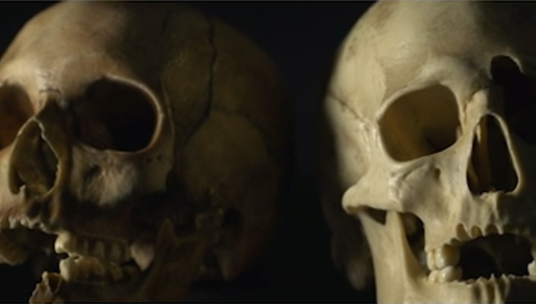 Snapshot from video explaining Christine Cave's research into the teeth of skeletal remains: https://youtu.be/Wfgcivss6A4. Credit: ANU