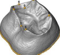 First 3D morphometric study of the molars of Sima de los Huesos