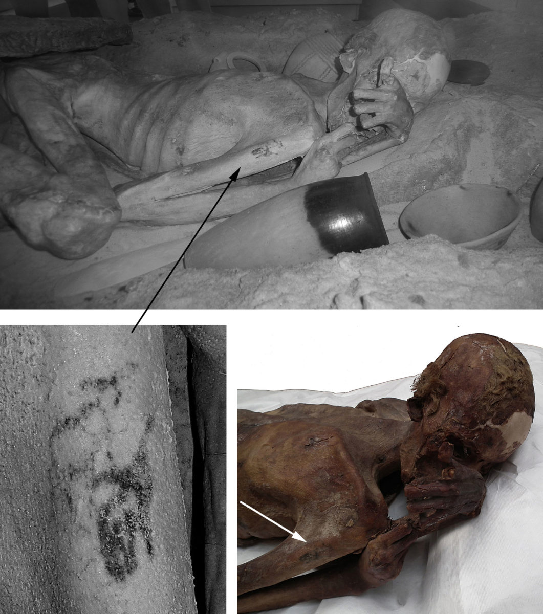 Top: Infrared image of the male mummy known as Gebelein Man A. Lower left: Detail of the tattoos observed on his right arm under infrared light. Lower right: The mummy and tattoos under normal lighting conditions.