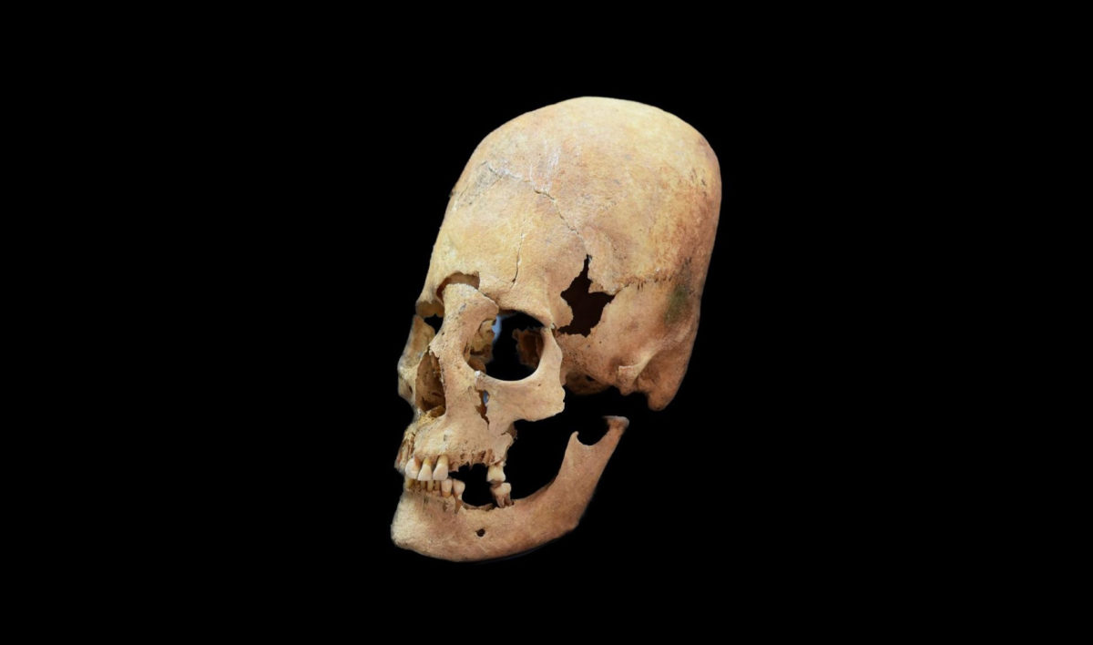 This is an artificially deformed female skull from Altenerding, an early Medieval site in Bavaria. Image credit: State Collection for Anthropology and Palaeoanatomy Munich.