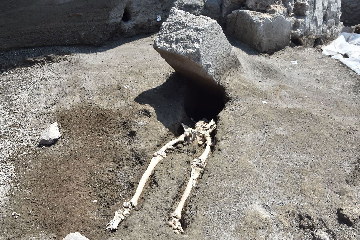 Anthropologists have identified the victim as a 30-year-old male who suffered from lesions on the tibia that indicate a bone infection. Credit : Parco Archeologico di Pompei