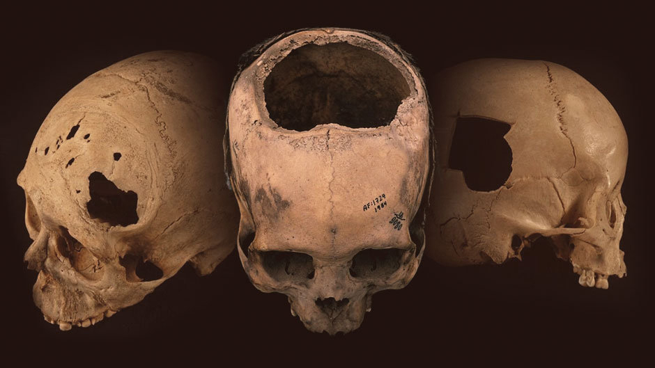 More ancient skulls bearing evidence of trepanation - a telltale hole surgically cut into the cranium - have been  found in Peru than the combined number found in the rest of the world. Credit: University of Miami