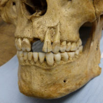 Research on British teeth unlocks potential for new insights into ancient diets