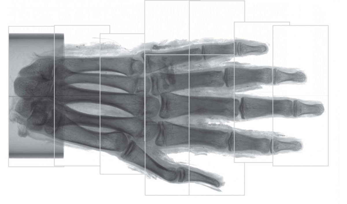 Here, the field of view for each scan is shown. Before tomographic reconstruction, the left regions of the fourth and fifth scan from the bottom were stitched together with their respective right counterpart. The scale shows centimeters. Credit: Radiological Society of North America