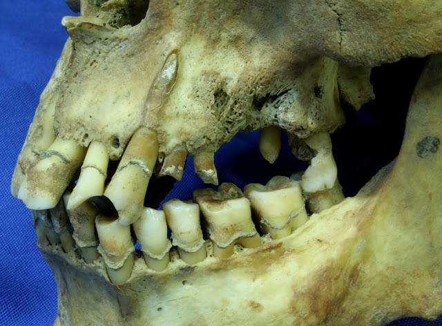 The dentition of a 26-35 year old male from the Irish Famine era, showing dental caries (tooth decay), tooth loss,  abscesses, calculus (tartar), periodontal disease and a clay-pipe facet. Credit: Jonny Geber.