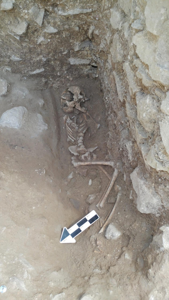 A 10-year-old was discovered lying on its side in a fifth-century Italian cemetery previously believed to be designated for babies, toddlers and unborn fetuses. Credit: Photo courtesy of David Pickel/Stanford University