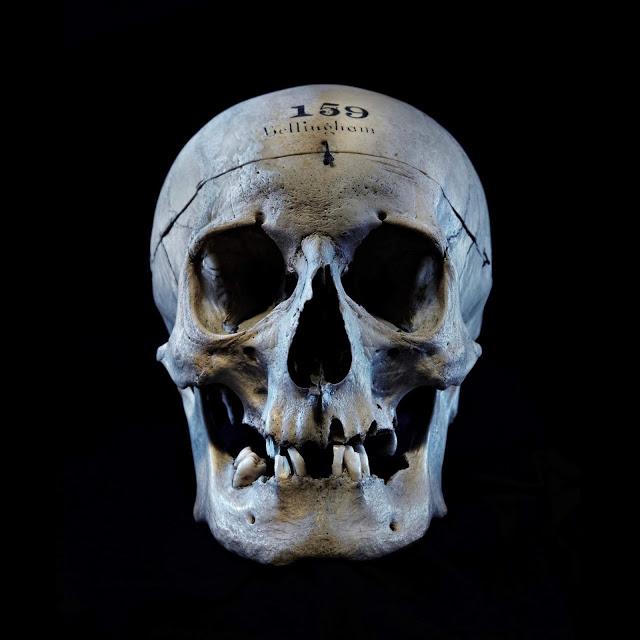 The skull of John Bellingham. Credit: Queen Mary, University of London.