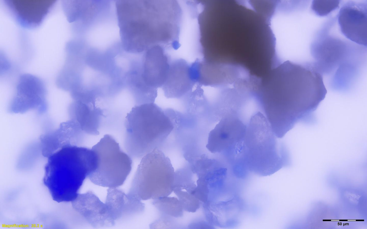 This is a magnified view of lapis lazuli particles embedded within medieval dental calculus. Credit: Monica Tromp