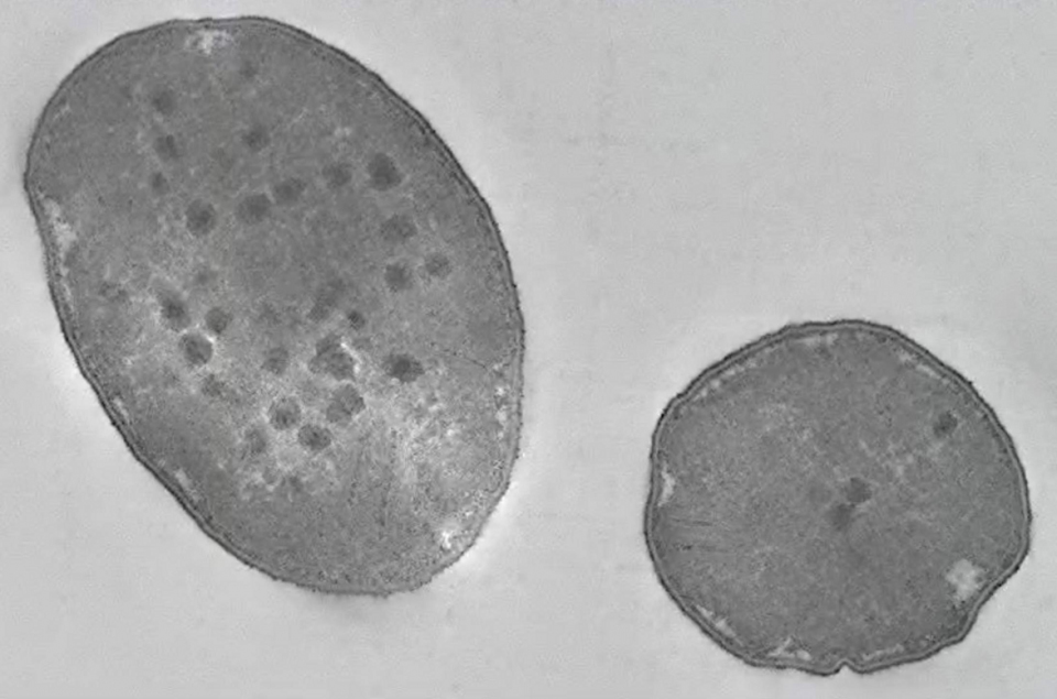 Electron microscopy image of microbial cells which respire sulfate. Credit : Guy Perkins and Mark Ellisman, National Center for Microscopy and Imaging Research