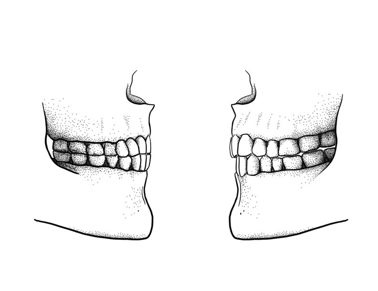 The difference between a Paleolithic edge-to-edge bite (left) and a modern overbite/overjet bite (right). © Tímea Bodogán