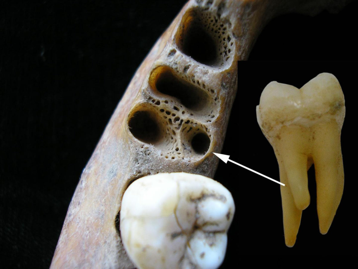 The three-rooted lower molar anomaly in a recent Asian individual. Left: tooth sockets showing position of accessory root; right: three-rooted lower first molar tooth. Credit: Christine Lee
