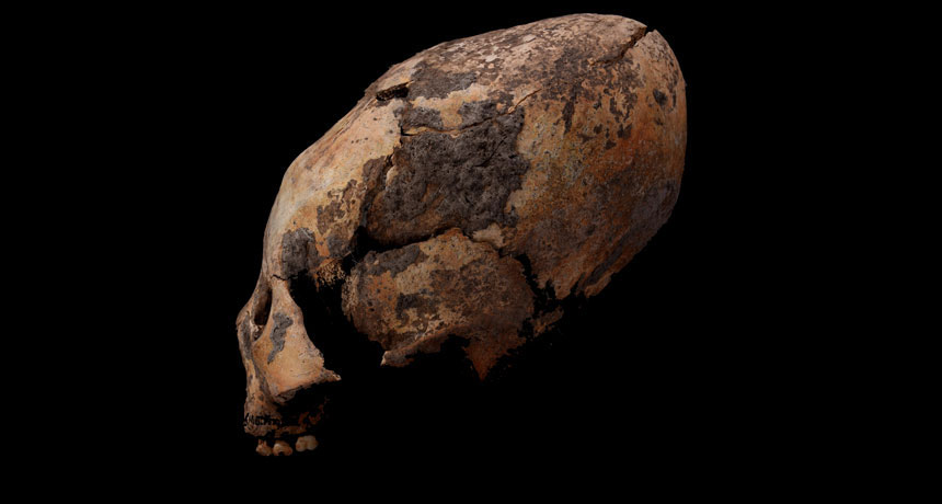 Oddly shaped human skulls discovered in northeastern China, including this approximately 6,000-year-old example from a child, point to millennia of intentional cranial reshaping in East Asia, researchers say. Photo Credit: Q. Wang/Science News.