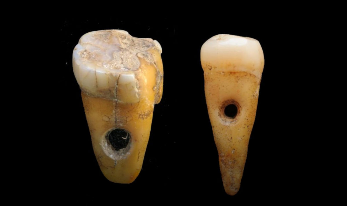 The two drilled 8,500-year-old human teeth found at Çatalhöyük in Turkey. Credit: University of Copenhagen
