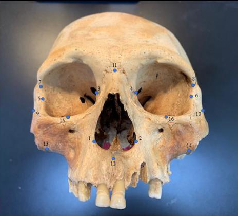 Researchers analyzed the skulls of early Caribbean inhabitants, using 3D facial