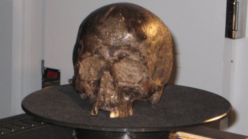 The Heslington Brain is a 2,600-year-old human brain found inside a skull buried in a pit in Heslington, Yorkshire, in England, by York Archaeological Trust in 2008.