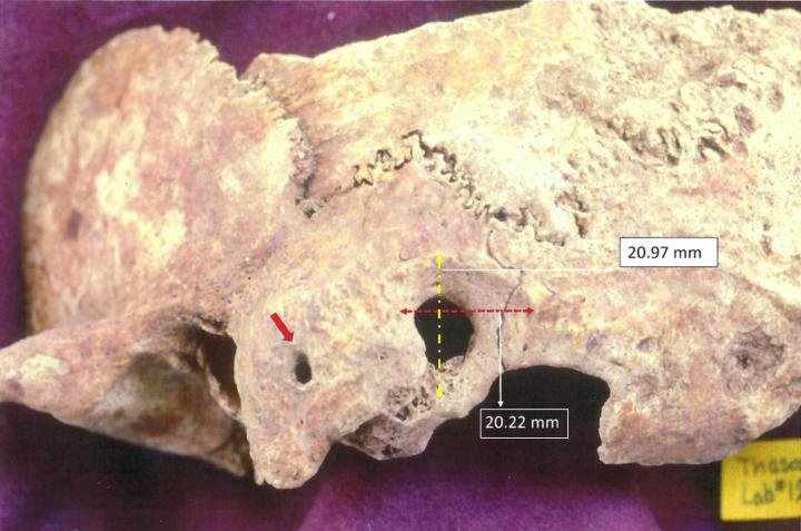 Ectocranial view of palaeopathological specimen: a) red arrow points to orifice on the mastoid process, and b) surgical preparation dimensions peripheral to trephination. Credit: Anagnostis P. Agelarakis/Adelphi University