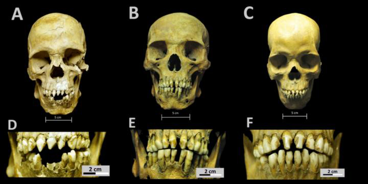 Skulls and dental decoration patterns for the three African individuals from the San José de los Naturales Royal Hospital. Credit:  Collection of San José de los Naturales, Osteology Laboratory, (ENAH), Mexico City, Mexico. Photo: R. Barquera & N. Bernal.