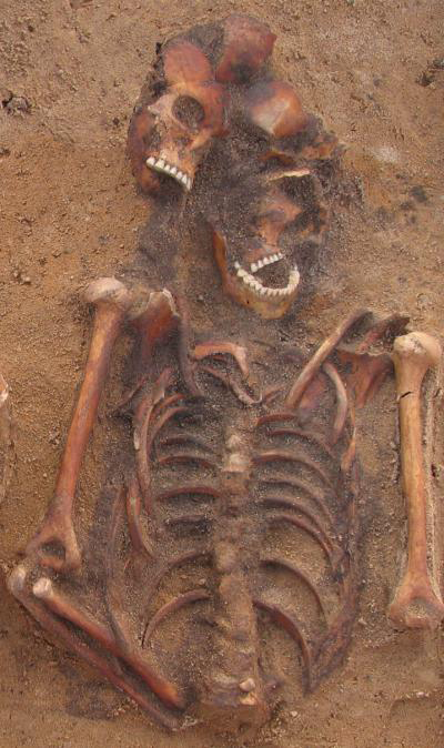Multiple burial in Vilnius, Lithuania containing an individual infected with both plague and yaws. Photo courtesy of Robertas Žukovskis and Scientific Reports