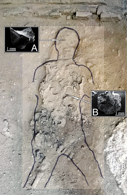79 AD eruption victim (Collegium Augustalium, Herculaneum): The body's  features are outlined with the sketch drawn at the time of the discovery (1961). The posterior part of the skull (the occipital bone and part of the parietals) had completely exploded, leaving the inner part visible. A: Vitrified brain fragment collected from the inner part of the skull; B: Vitrified spinal  cord fragment from the spine (SEM, scale bars in mm). Credit: Petrone et al. 2020