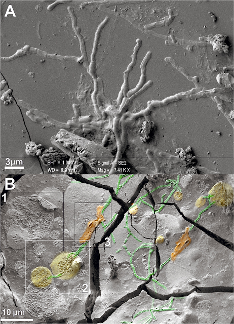 A: SEM image of brain axons. B: SEM image of spinal cord axons (green)  intercepting cell bodies and sheath-shaped structures (yellow and orange) (scale bars in micron). Credit: Petrone et al. 2020