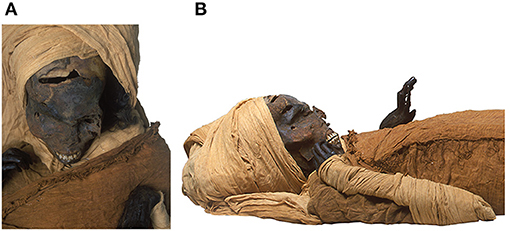 Picture of mummy Seqenenre-Taa-II. (A) Picture of head and upper torso of the mummy Seqenenre-Taa-II shows severe multiple craniofacial injuries. (B) Picture of right lateral view of the head and upper torso of mummified Seqenenre shows the deformed upper limbs with flexed hands at the wrists and spastic fingers.