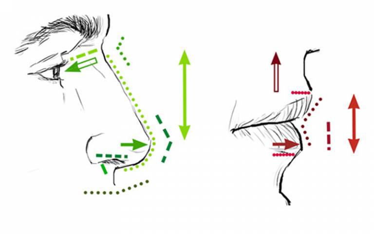 Diagram showing measurements of facial features, such as nose roundedness, nose protrusion, and lip thickness (Bonfante et al, 2021). Photo: University College London