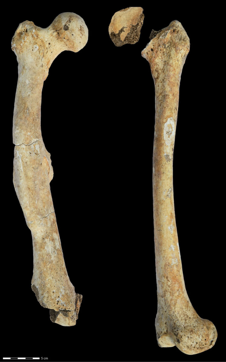 Right and left femoral bones of the male individual from the North Caucasus. The bones exhibit pathological changes examined in the study. © Katharina Fuchs, Institut für Klinische Molekularbiologie