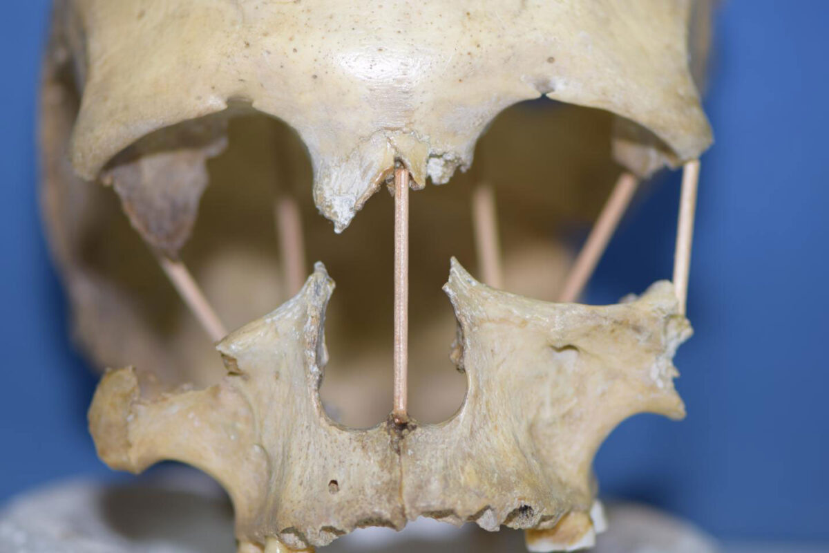 The skull of Peştera Muierii 1, which entire genome is now successfully sequenced. Credit : Mattias Jakobsson
