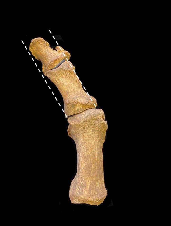 Excavated medieval foot bones showing hallux valgus, with lateral deviation of the great toe. Credit : Jenna Dittmar