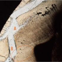 VUB-researchers identify interglobular dentine in cremated human teeth
